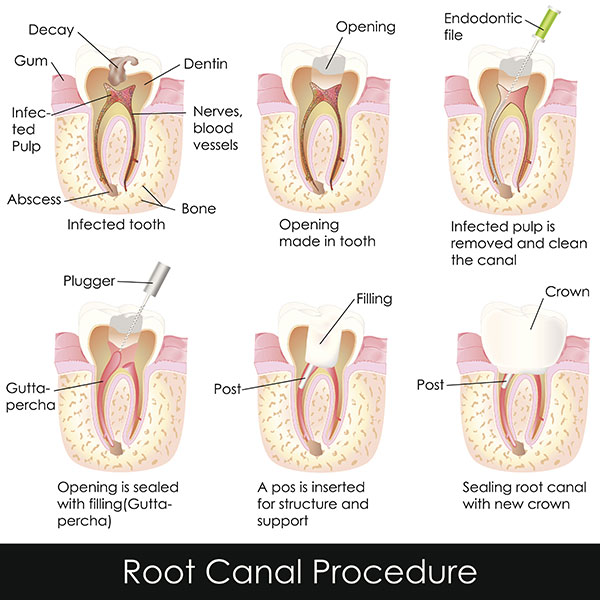 Diagram of Root Canal Procedure
